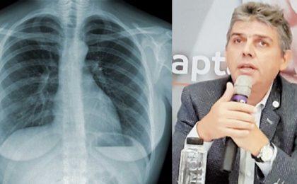 """Medicii de la Spitalul """"Dr. Victor Babeș"""" din Timişoara atrag atenția că a crescut prevalența astmului bronșic"""